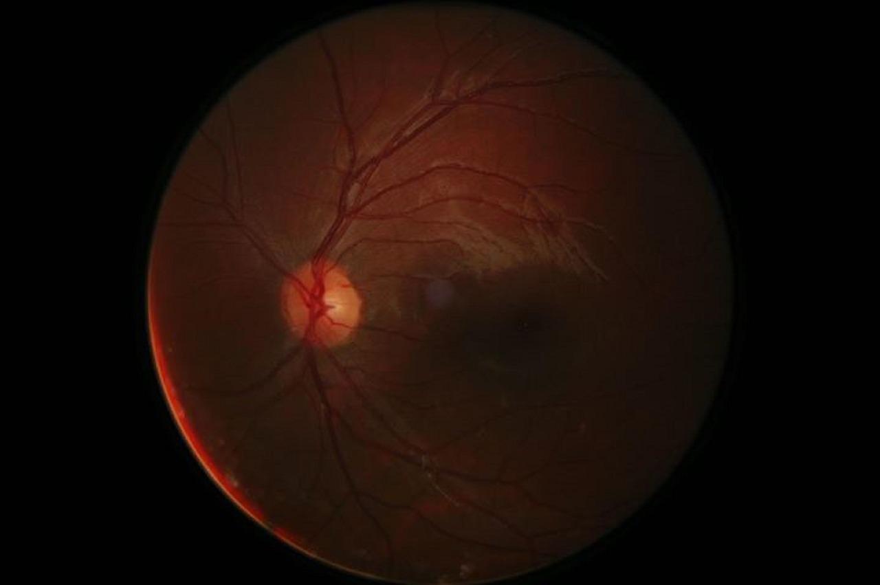 cirugía del glaucoma