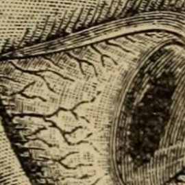 Queratocono - Quijada | Medicina Ocular