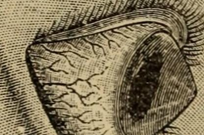 Queratocono - Quijada   Medicina Ocular