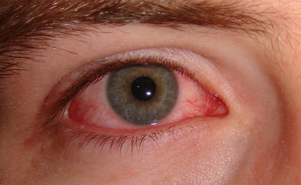 Conjuntivitis - Síndrome de Reiter
