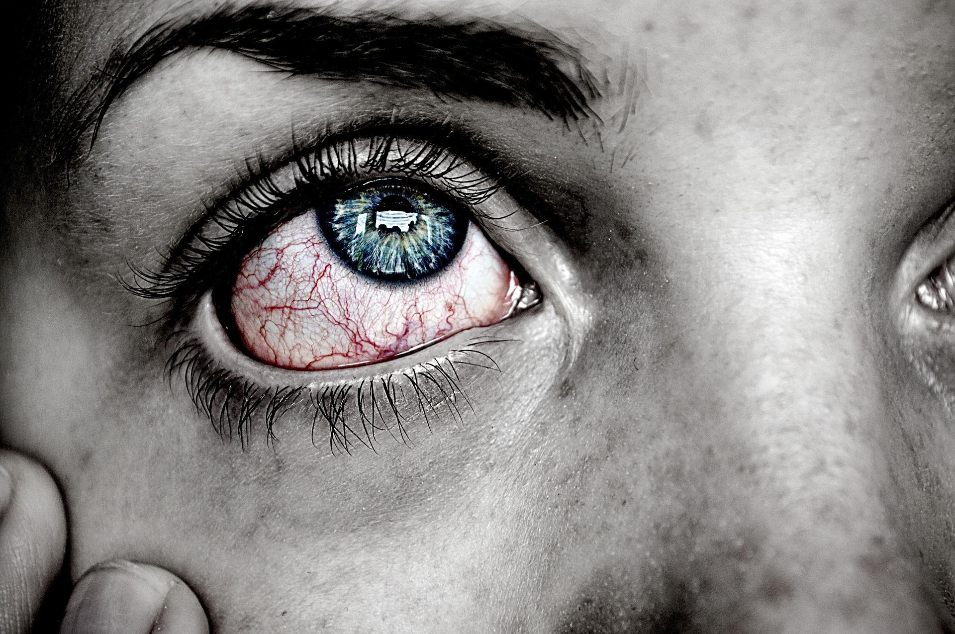 ¿Qué es la conjuntivitis? - Quijada   Medicina Ocular