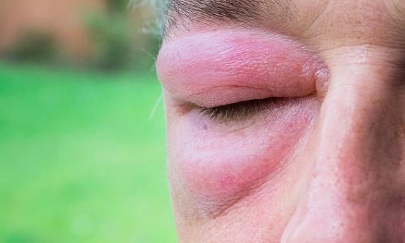Celulitis orbitaria, ¿cómo se origina y qué síntomas presenta?